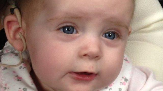Youngest Cochlear Implant in UK for Evie Smith